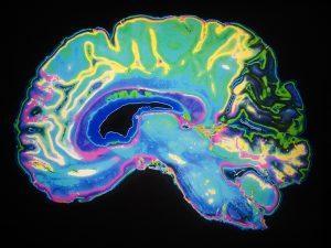 brain1 300x225 brain1